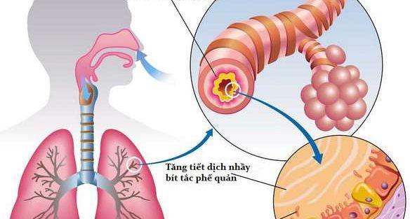 Phương pháp chữa viêm phế quản dứt điểm
